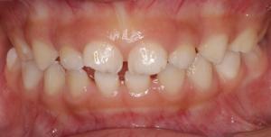 歯 乳歯 すき っ 乳歯のすきっ歯|こころ歯科クリニック
